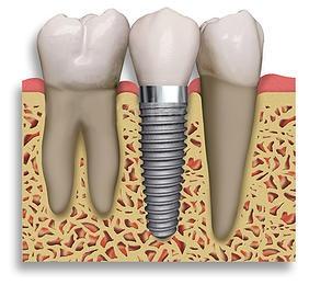 teeth_whitening_raleigh_nc